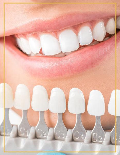 Porselen Lamine Porselen Lamina Diş İzmir Bostanlı ve Karşıyaka Denta Point Polikliniklerinde