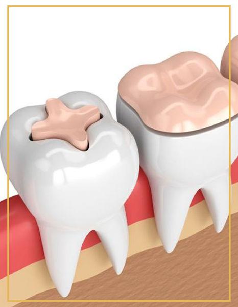 İnlay Onlay Overlay Restorasyon Tedavileri Denta Point Bostanlı ve Karşıyaka Poliklinklerin de Yapılmaktadır.