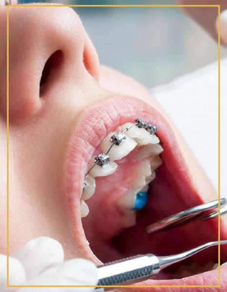 Sabit Ortodontik Tedavi İzmir Denta Point Karşıyaka ve Bostanlı Diş Sağlığı Poliklinklerinde