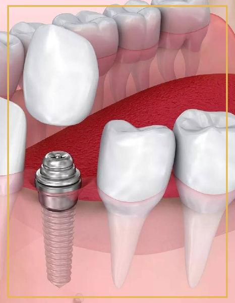 Vidasız İmplant Diş Tedavileri İzmir Denta Point Ağız ve Diş Sağlığı Bostanlı ve Karşıyaka Polikliniklerinde Hizmetinizdedir.