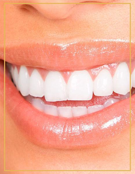 Ofis Tipi Diş Beyazlatma
