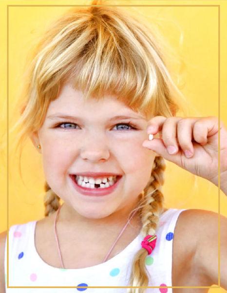 Fissür Diş Aşısı resmi