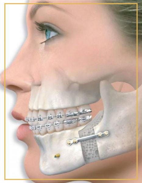 Çene Ortopedisi İzmir Bostanlı Karşıyaka Denta Point Ağız ve Diş Sağlığı Poliklinkleri