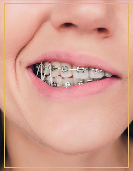 Metal Bralet ve Ortodonti İzmir Karşıyaka ve Bostanlı DentaPoint Poliklinklerinde